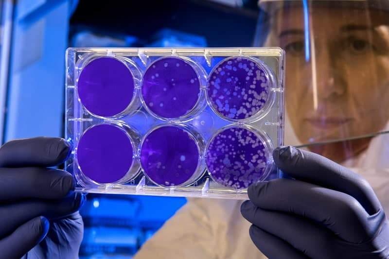 Virus Korona Sudah Menjangkit 2019 Jiwa, 56 Dipastikan Meninggal https://unsplash.com/photos/LiNIONbajm4 Photo by CDC